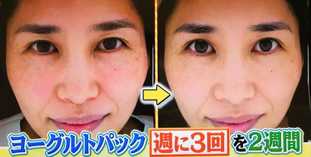 【世界一受けたい授業で放映】夏の紫外線ダメージを今すぐケア!シミ・くすみを予防する方法!肌の潤いを保つ美肌菌とは?